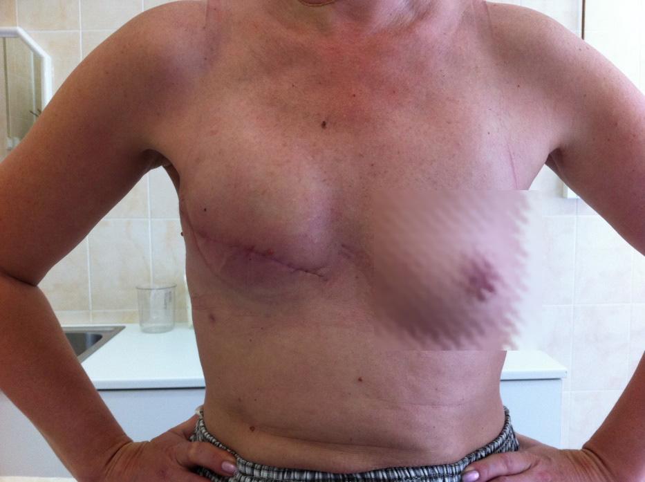 Фото рака грудины у женщин